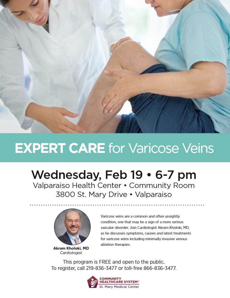 Expert Care for Vericose Veins